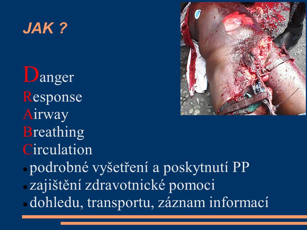 Nejčastější chyby pozornost se věnuje nedůležitým věcem  autonehoda - ošetřování zraněných X vlastní bezpečnost Křičí na vás matka dítěte – ono krvácí z kolene!!!!.