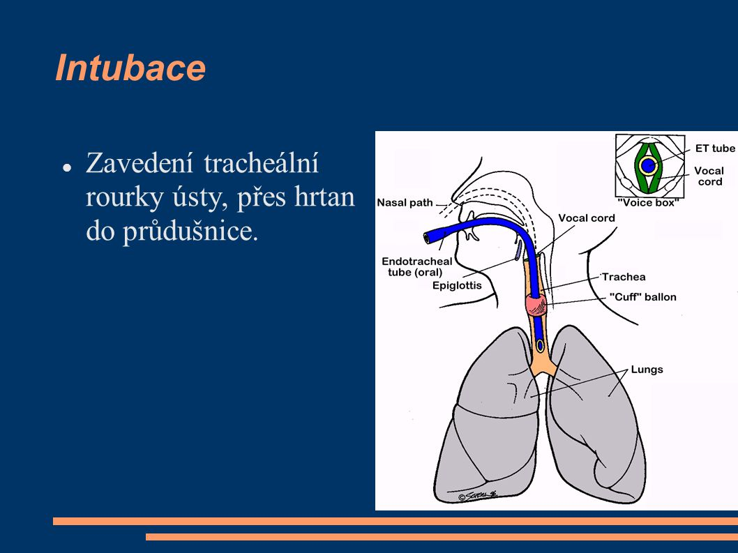 Intubace Zavedení tracheální rourky ústy, přes hrtan do průdušnice.