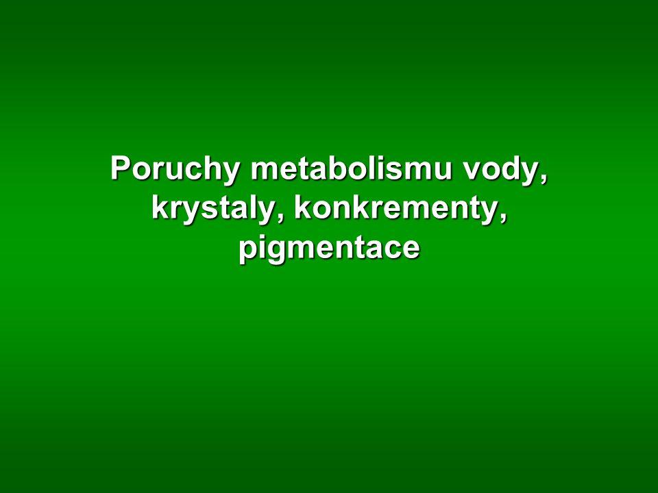 Poruchy metabolismu vody, krystaly, konkrementy, pigmentace