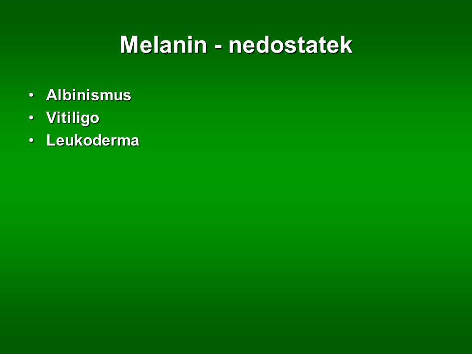 Melanin - nedostatek AlbinismusAlbinismus VitiligoVitiligo LeukodermaLeukoderma