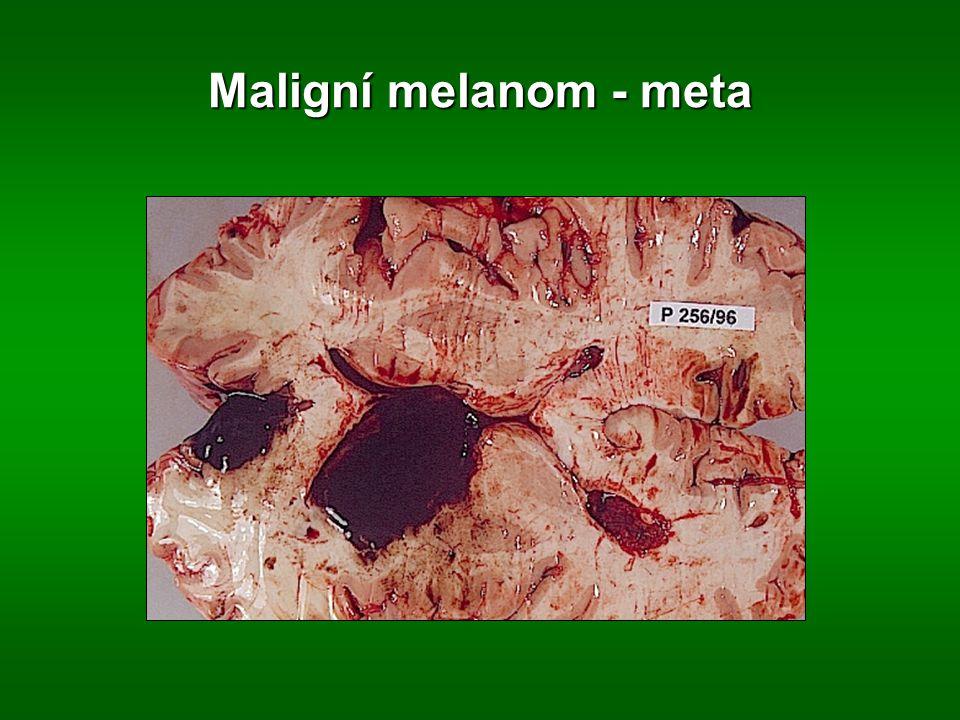 Maligní melanom - meta