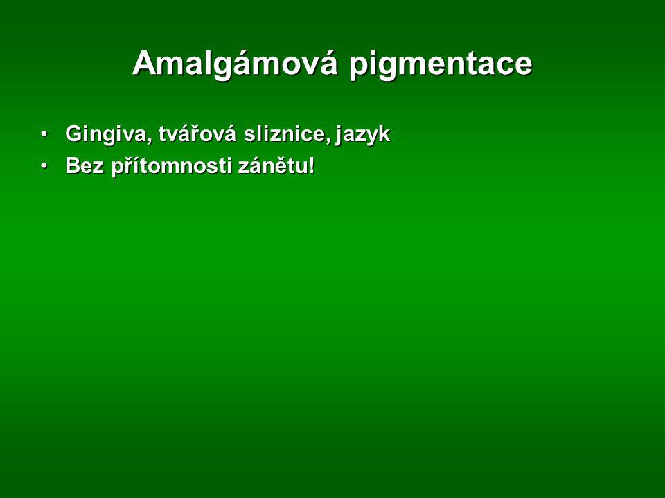 Amalgámová pigmentace Gingiva, tvářová sliznice, jazykGingiva, tvářová sliznice, jazyk Bez přítomnosti zánětu!Bez přítomnosti zánětu!