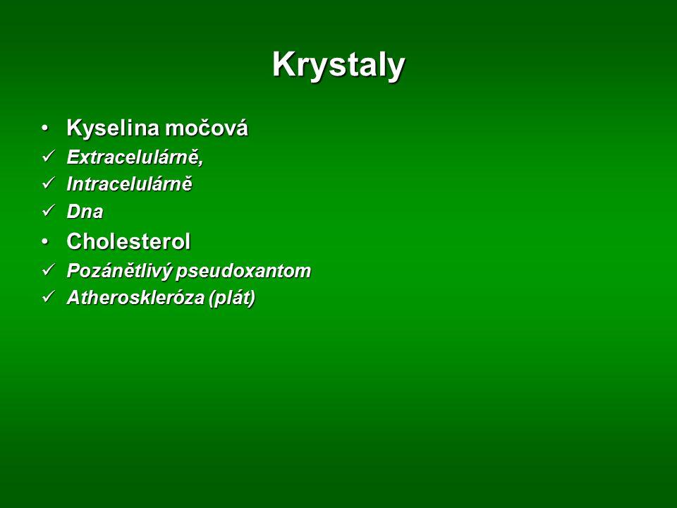 Krystaly Kyselina močováKyselina močová Extracelulárně, Extracelulárně, Intracelulárně Intracelulárně Dna Dna CholesterolCholesterol Pozánětlivý pseud