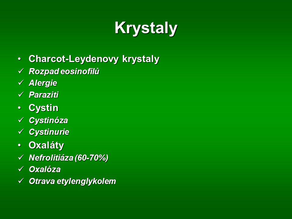 Krystaly Charcot-Leydenovy krystalyCharcot-Leydenovy krystaly Rozpad eosinofilů Rozpad eosinofilů Alergie Alergie Paraziti Paraziti CystinCystin Cysti
