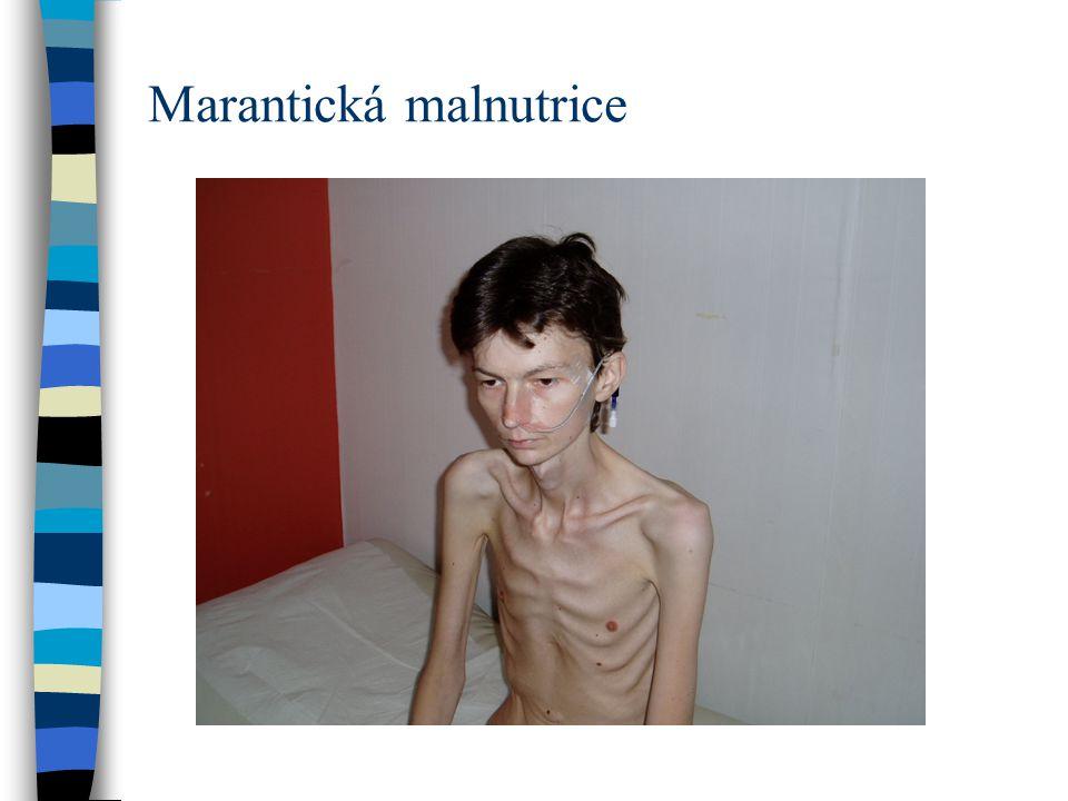 Marantická malnutrice