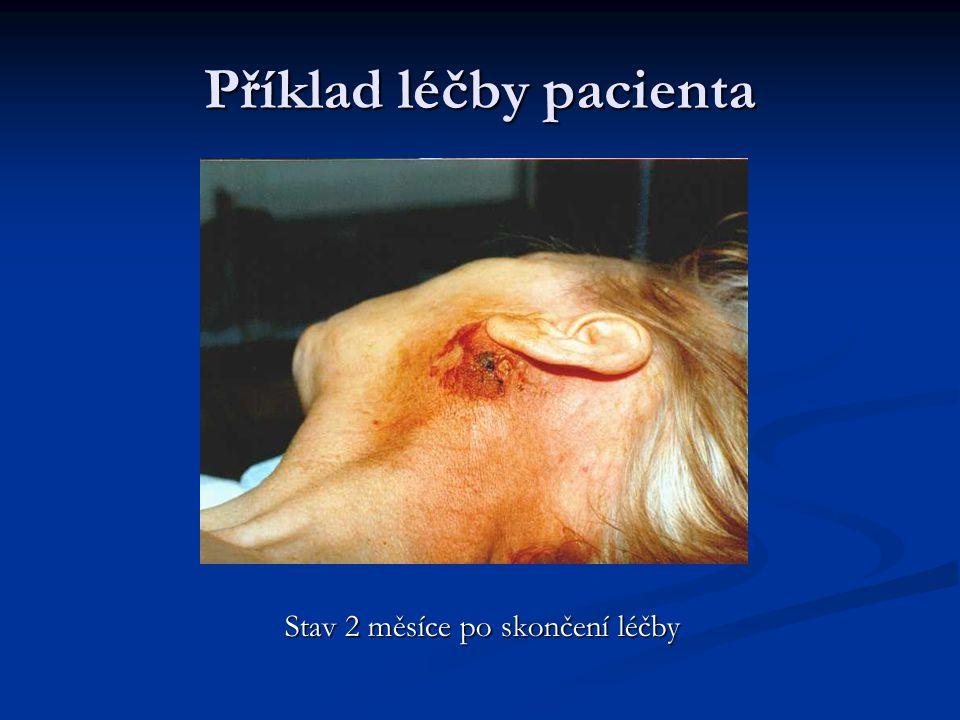Příklad léčby pacienta Stav na konci léčby