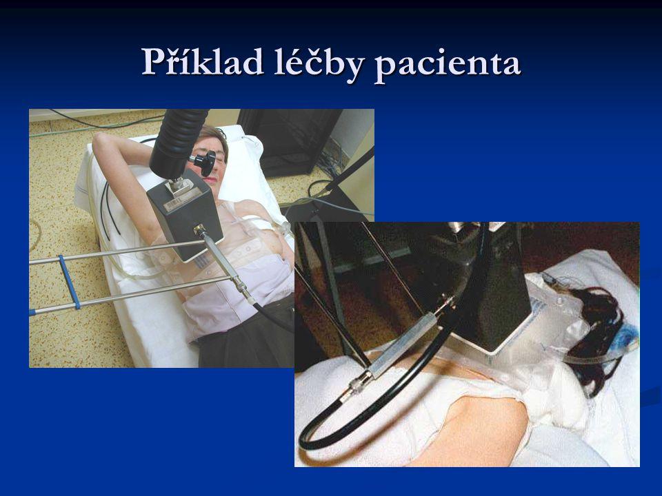 Příklad léčby pacienta Stav 2 měsíce po skončení léčby