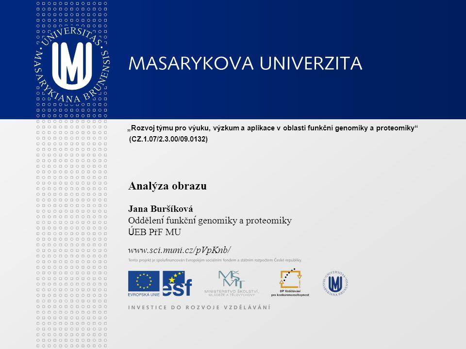 """Analýza obrazu Jana Buršíková Oddělen í funkčn í genomiky a proteomiky Ú EB PřF MU www.sci.muni.cz/pVpKnb/ """"Rozvoj týmu pro výuku, výzkum a aplikace v oblasti funkční genomiky a proteomiky (CZ.1.07/2.3.00/09.0132)"""