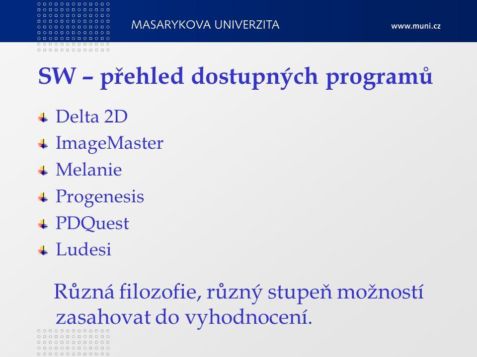SW – přehled dostupných programů Delta 2D ImageMaster Melanie Progenesis PDQuest Ludesi Různá filozofie, různý stupeň možností zasahovat do vyhodnocení.