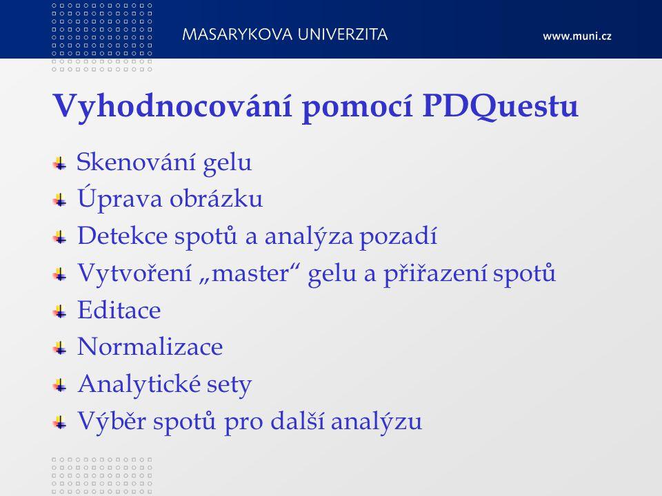 """Vyhodnocování pomocí PDQuestu Skenování gelu Úprava obrázku Detekce spotů a analýza pozadí Vytvoření """"master gelu a přiřazení spotů Editace Normalizace Analytické sety Výběr spotů pro další analýzu"""