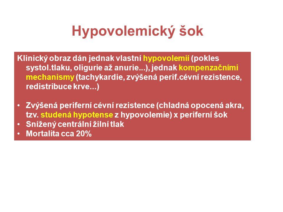 = Kritický pokles minutového srdečního volumu, neumožňující adekvátní perfuzi tkání (tj.