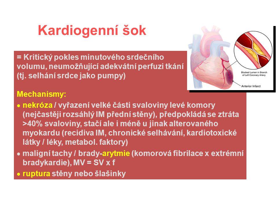 Nejčastější příčiny akutní obstrukce: - tamponáda srdeční - rozsáhlá plicní embolizace - jiný (akutní) útlak plicní cirkulace či dolní duté žíly Obstrukční šok