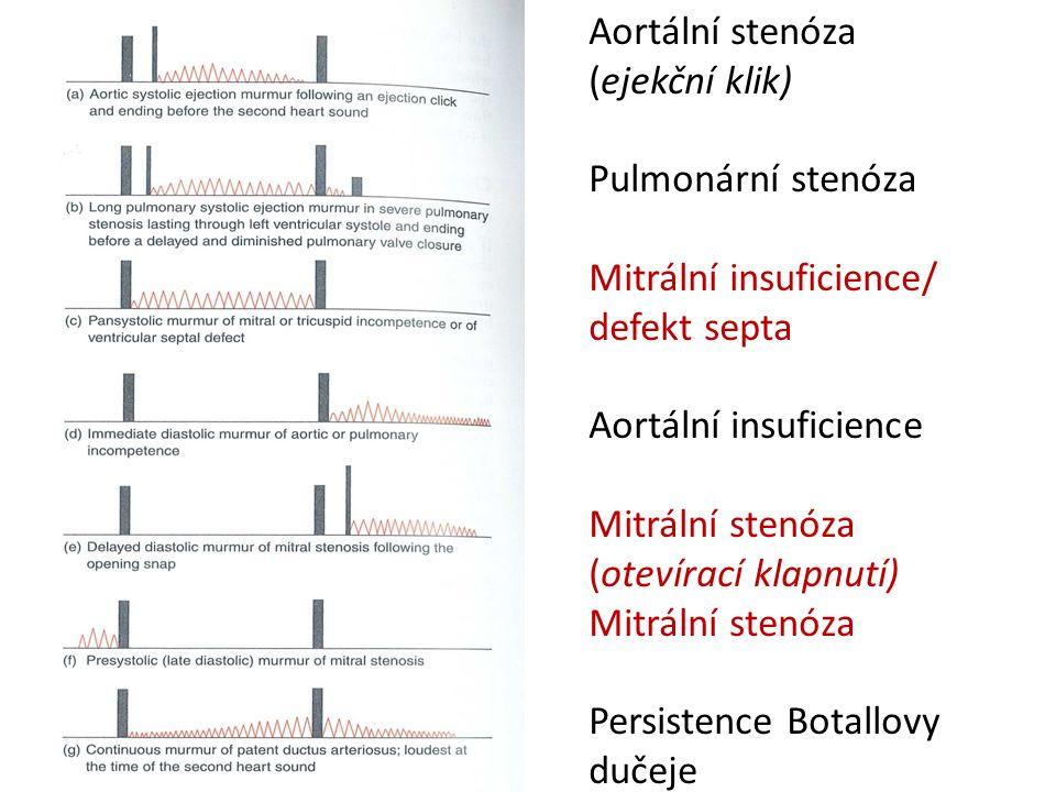 Aortální stenózaMitral stenosisAortic insufficiencyMitral insufficiency VrozenáRevmatickáAbnormality cípůEndocardida RevmatickáKalcifikaceRevmatická; endokarditida Infarkt myokartu – ruptura m.