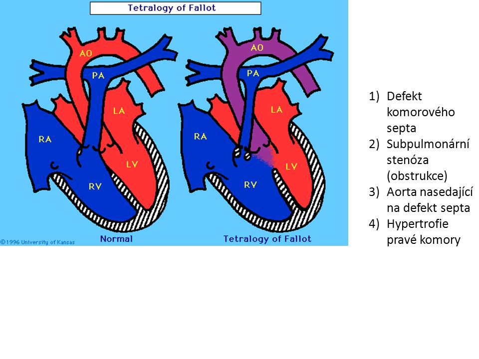 Angina pectoris (AP) námahová - stabilní: fixní stenóza aterosklerotický plát snižuje koronární rezervu, zvýšené nároky na myokard (tachykardie) vyvolají projevy ischémie subendokardiálně