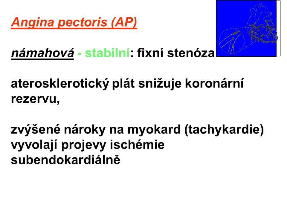 vazospastická (variantní, Prinzmetalova): spasmus epikardiální tepny, transmurální ischemické změny; vzniká v klidu (často v noci), reperfuze může být provázena arytmiemi hyperktivita sympatiku, poruchy kalcia v hladké svalovině cév, změny produkce NO nerovnováha mezi endoteliálními vazodilatačními a vazokonstrikčními mechanismy