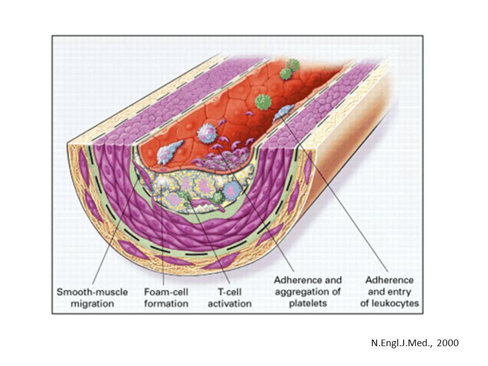 Fibrotizace – (fibrous cap) N.Engl.J.Med., 2000