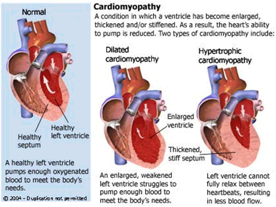Restrikční kardiomyopatie Charakteristika: ♥ subendokardiální fibróza (event.