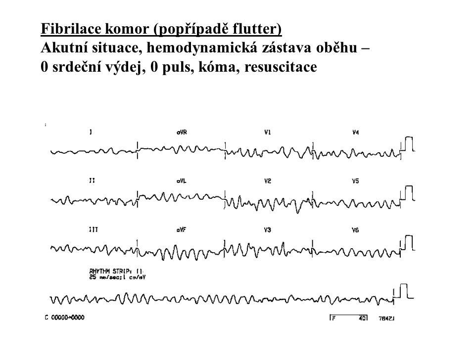 REENTRY nejčastější příčina tachyarytmií Vznik: - dvě vodivé dráhy vzájemně propojené - různá vodivost (rychlá a pomalá) - dočasný/jednosměrný blok 1 z drah vede ke vzniku reentry -ischemie, fibróza -vrozená akcesorní dráha