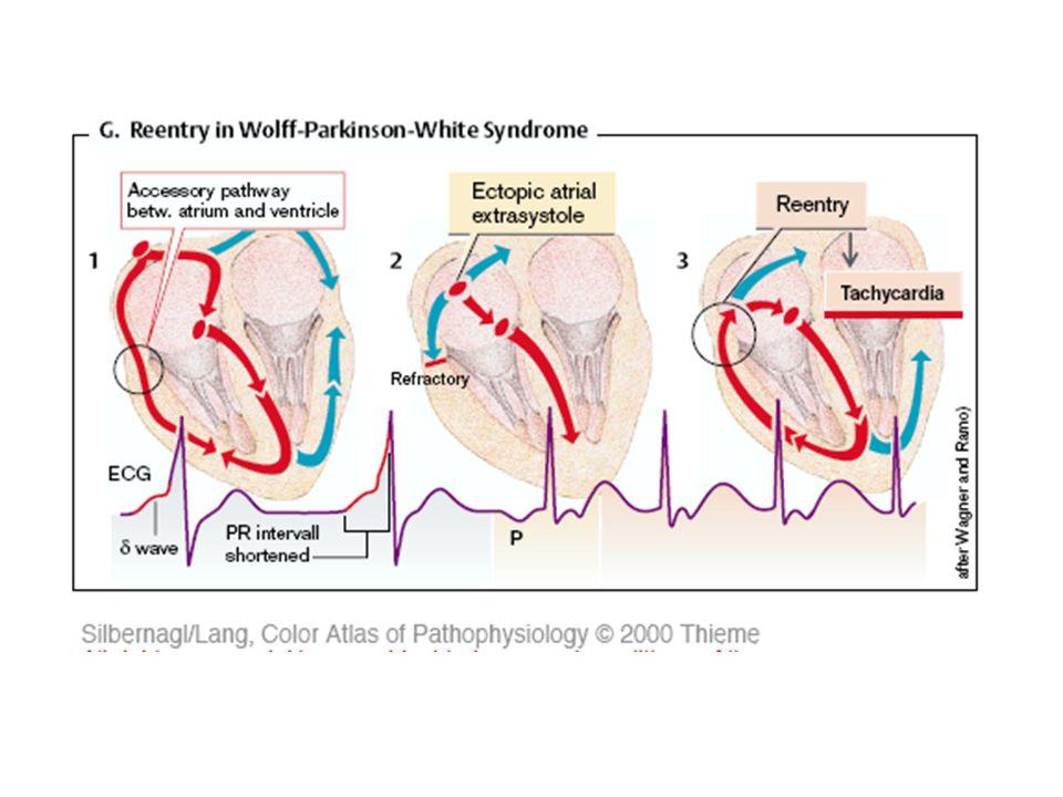 Síňová (supraventriculární) extrasystola (SVES) šíření vzruchu komorou je normální, QRS komplex má normální tvar a dobu trvání