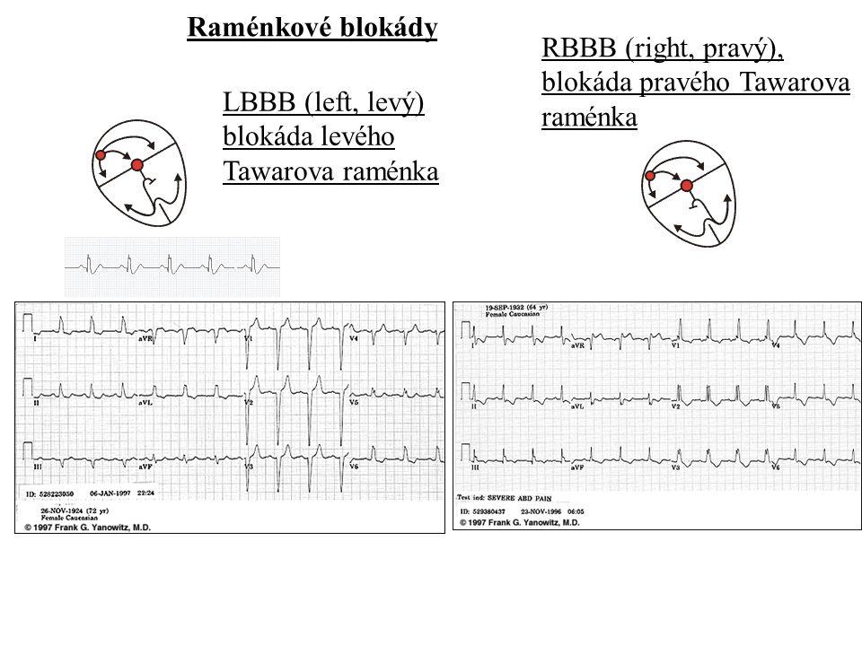 Raménkové blokády LBBB (left, levý) blokáda levého Tawarova raménka RBBB (right, pravý), blokáda pravého Tawarova raménka