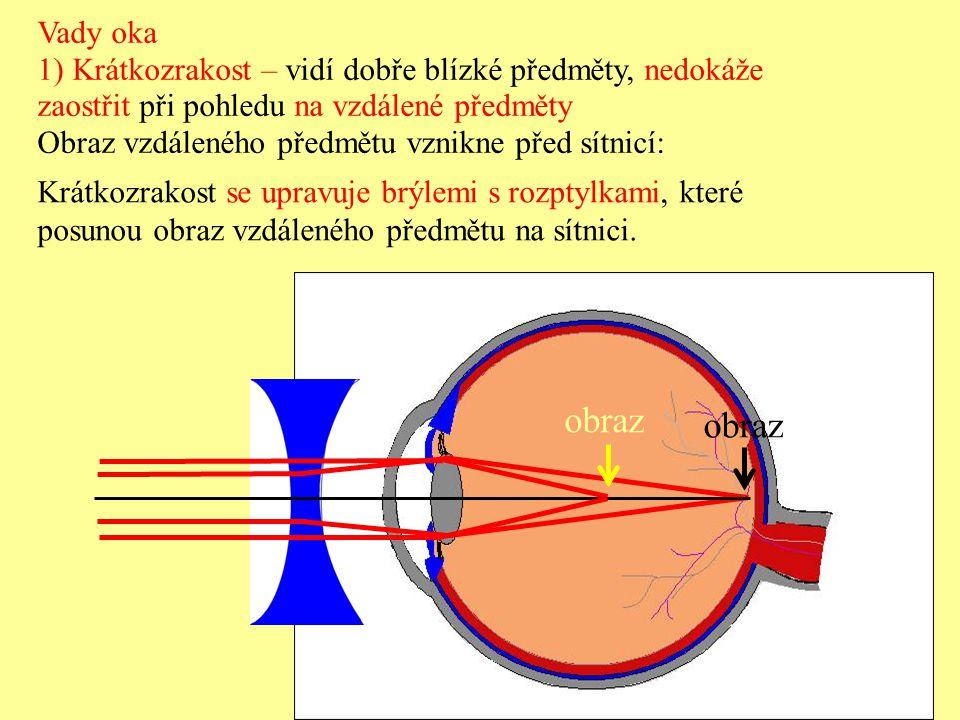 Vady oka 1) Krátkozrakost – vidí dobře blízké předměty, nedokáže zaostřit při pohledu na vzdálené předměty Obraz vzdáleného předmětu vznikne před sítnicí: Krátkozrakost se upravuje brýlemi s rozptylkami, které posunou obraz vzdáleného předmětu na sítnici.