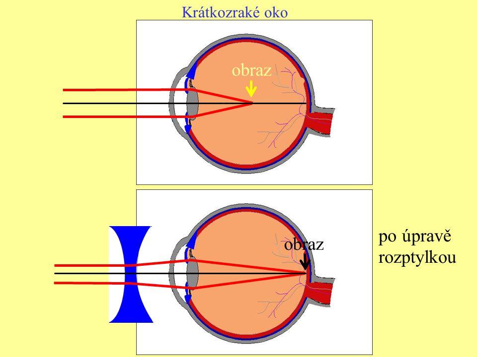 2) Dalekozrakost – vidí dobře vzdálené předměty, nedokáže zaostřit při pohledu na blízké předměty Obraz blízkých předmětů vznikne až za sítnicí: Dalekozrakost se upravuje brýlemi se spojkami, které posunou obraz blízkého předmětu na sítnici.