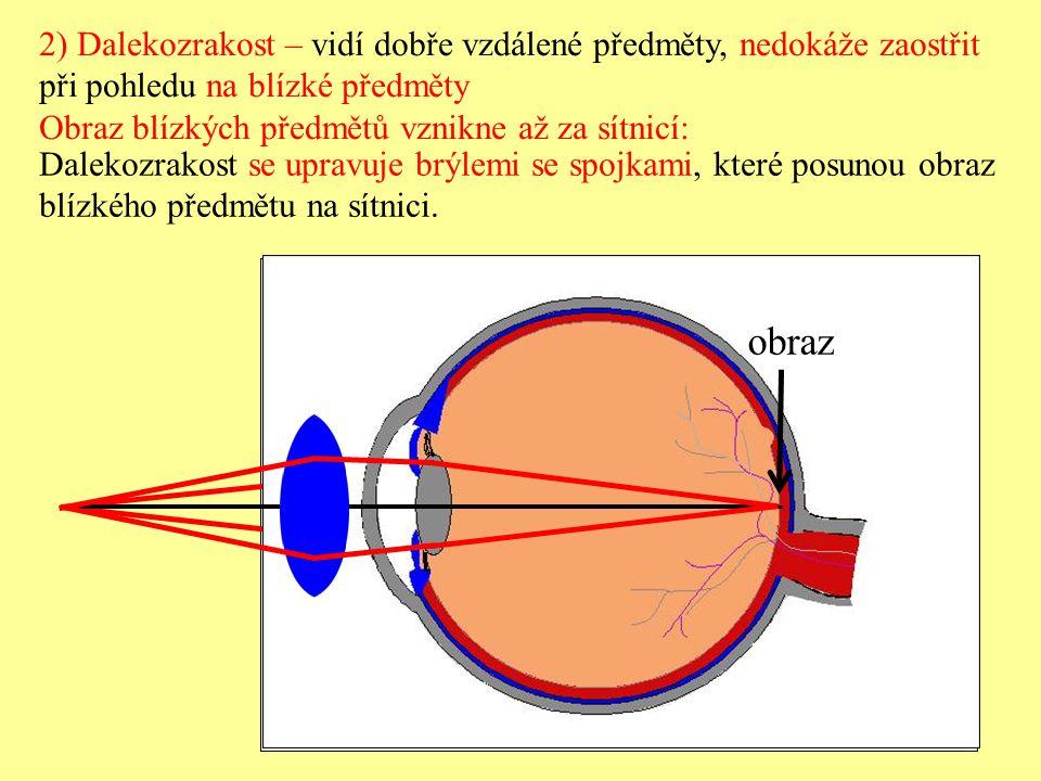 Dalekozraké oko obraz po úpravě spojkou