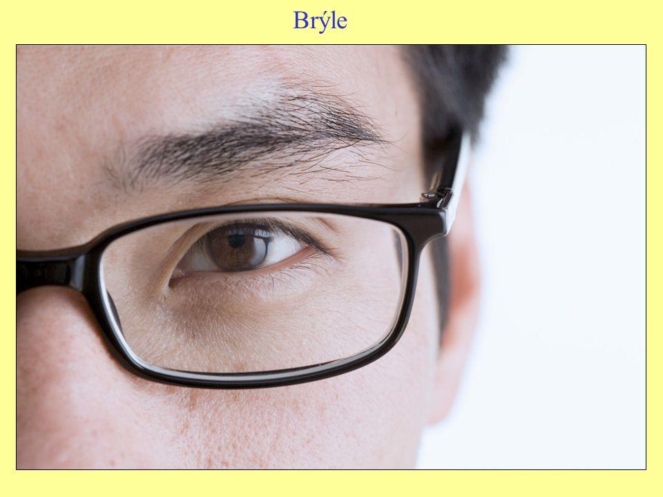 Zajímavost – další vady oka šedý zákal – snížená průhlednost čočky zelený zákal – zvýšení tlaku tekutiny uvnitř oka šilhavost – poškození očního nervového svalu barvoslepost – neschopnost rozlišovat některé barvy (obvykle jde o červenou a zelenou) slepota – pouze 5 % nevidomých je úplně slepých.