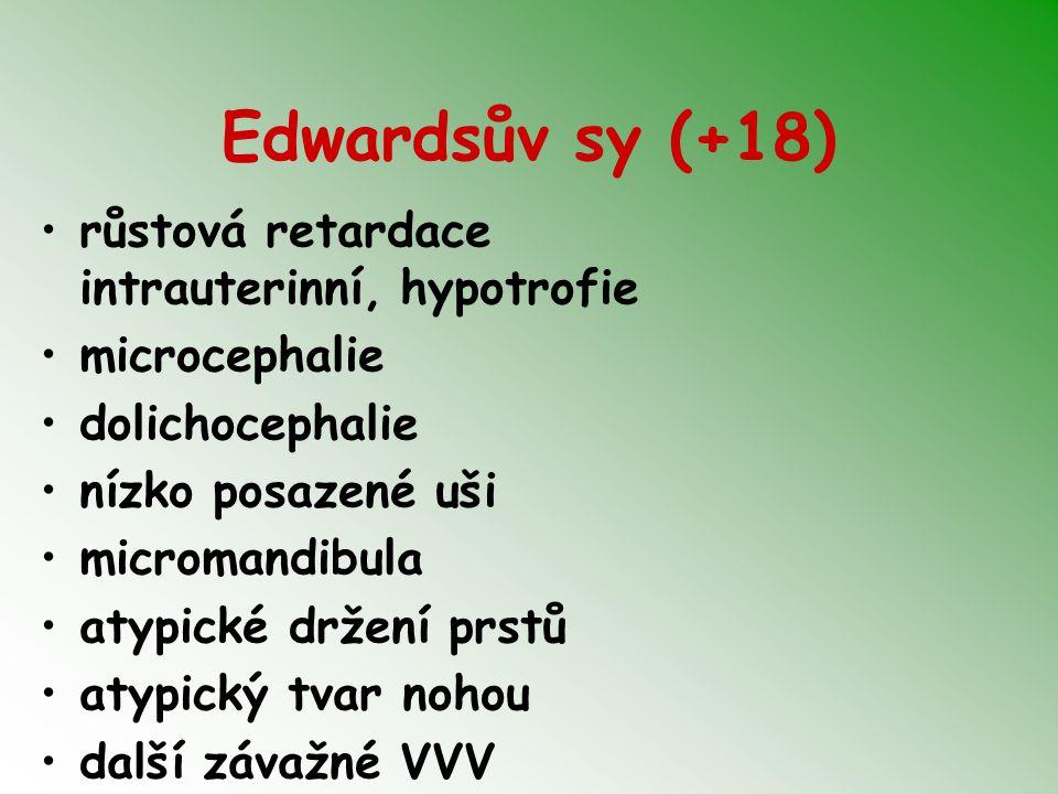 Edwardsův sy (+18) růstová retardace intrauterinní, hypotrofie microcephalie dolichocephalie nízko posazené uši micromandibula atypické držení prstů a