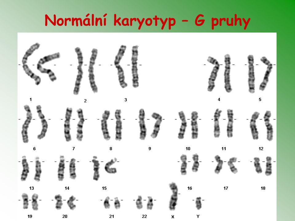 Indikace k odběru plodové vody Patologický výsledek biochemického screeningu Patologický UZ nález u plodu Věk rodičů – ženy nad 35 let, součet věku partnerů nad 70-75 let Nosičství balancované chromosomové aberace u rodičů Vrozená chromosomová aberace v rodině, v předchozím těhotenství IVF/ICSI… Monogenně dědičné onemocnění v rodině