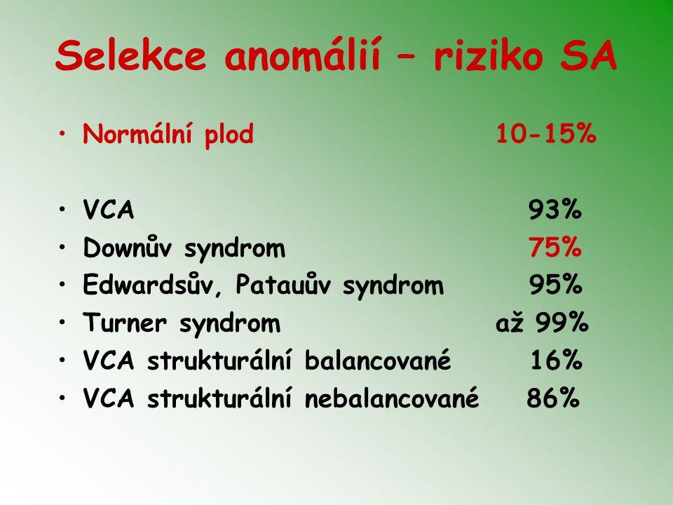 Wolf-Hirschhornov syndróm (4p-)