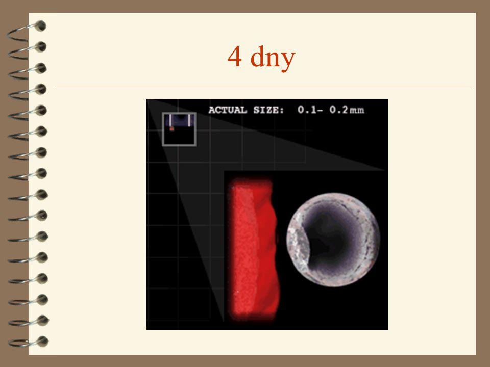 Prenatální diagnostika 4 Ultrazvuk 4 Alfafetoproteinový test 4 Amniocentéza