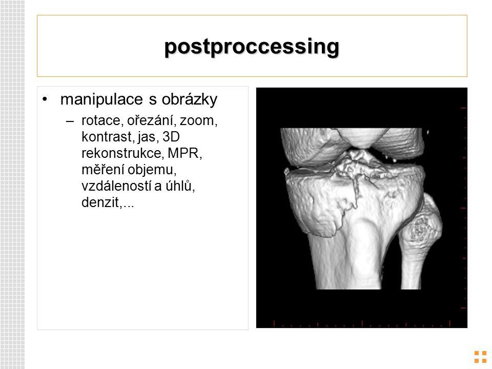 postproccessing manipulace s obrázky –rotace, ořezání, zoom, kontrast, jas, 3D rekonstrukce, MPR, měření objemu, vzdáleností a úhlů, denzit,...