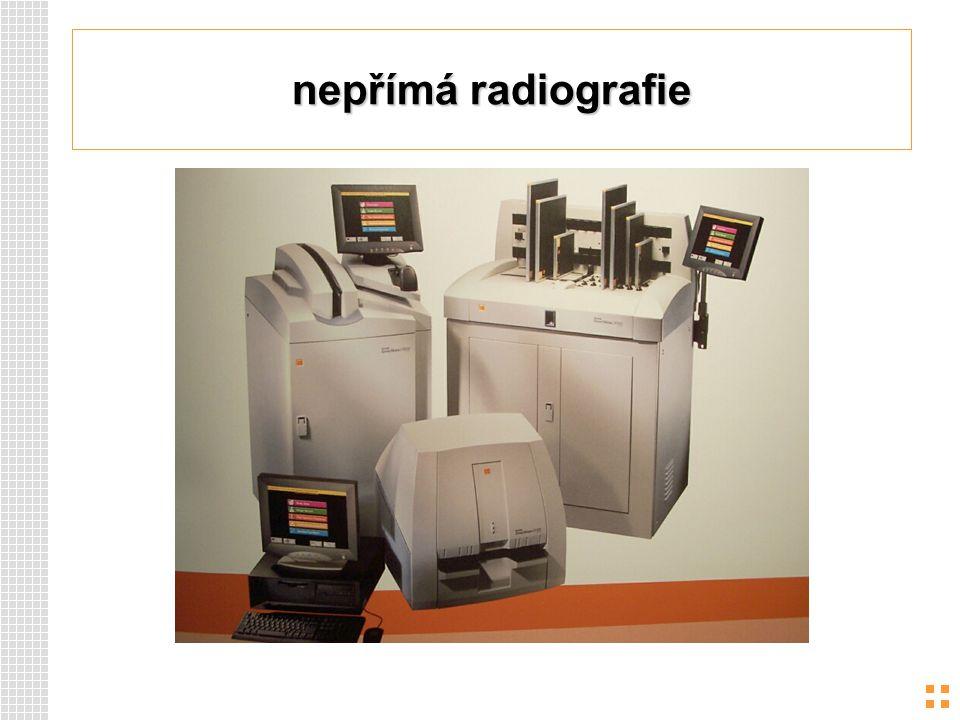 nepřímá radiografie