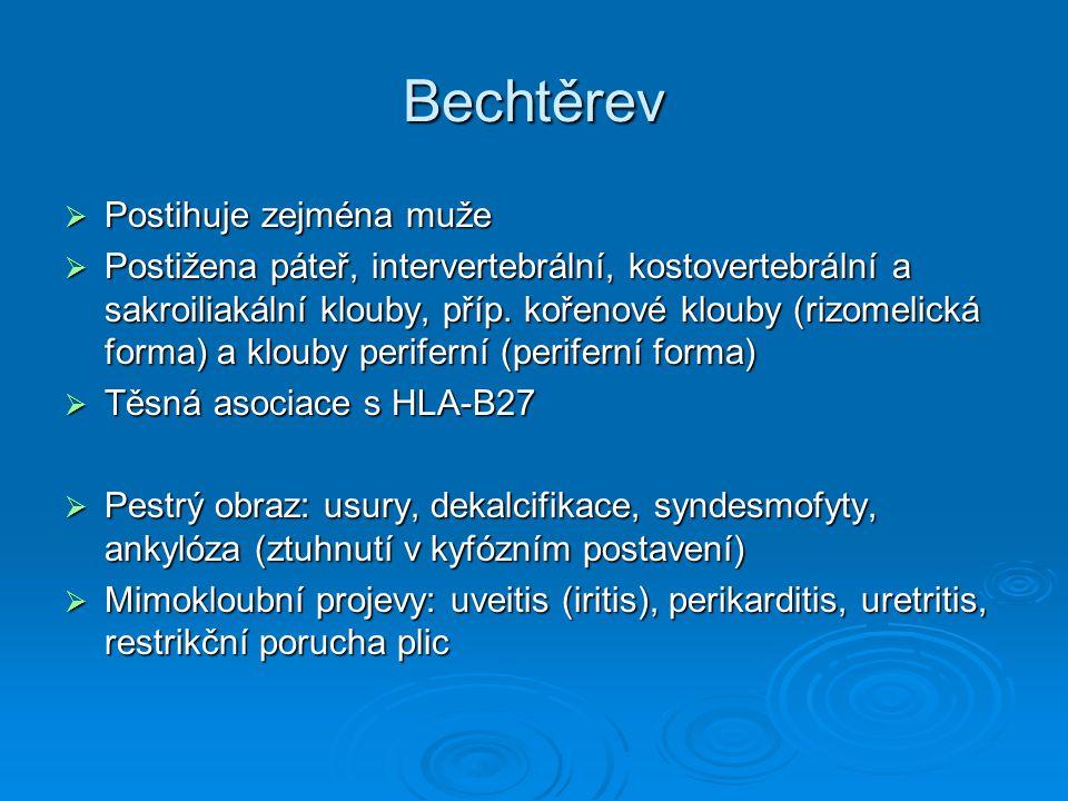 Bechtěrev  Postihuje zejména muže  Postižena páteř, intervertebrální, kostovertebrální a sakroiliakální klouby, příp. kořenové klouby (rizomelická f