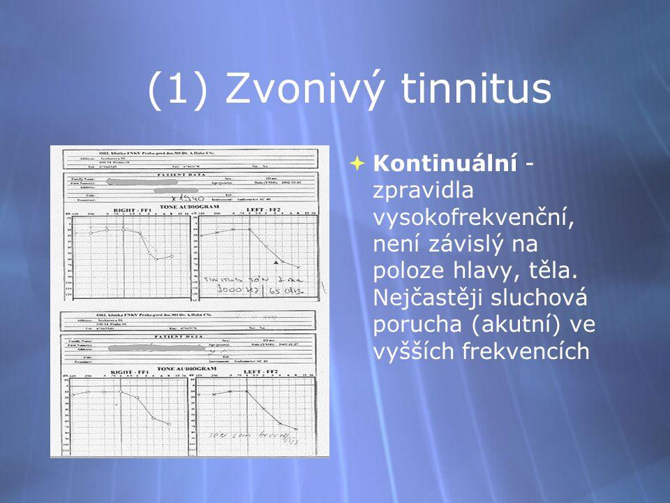 (1) Zvonivý tinnitus  Kontinuální - zpravidla vysokofrekvenční, není závislý na poloze hlavy, těla. Nejčastěji sluchová porucha (akutní) ve vyšších f