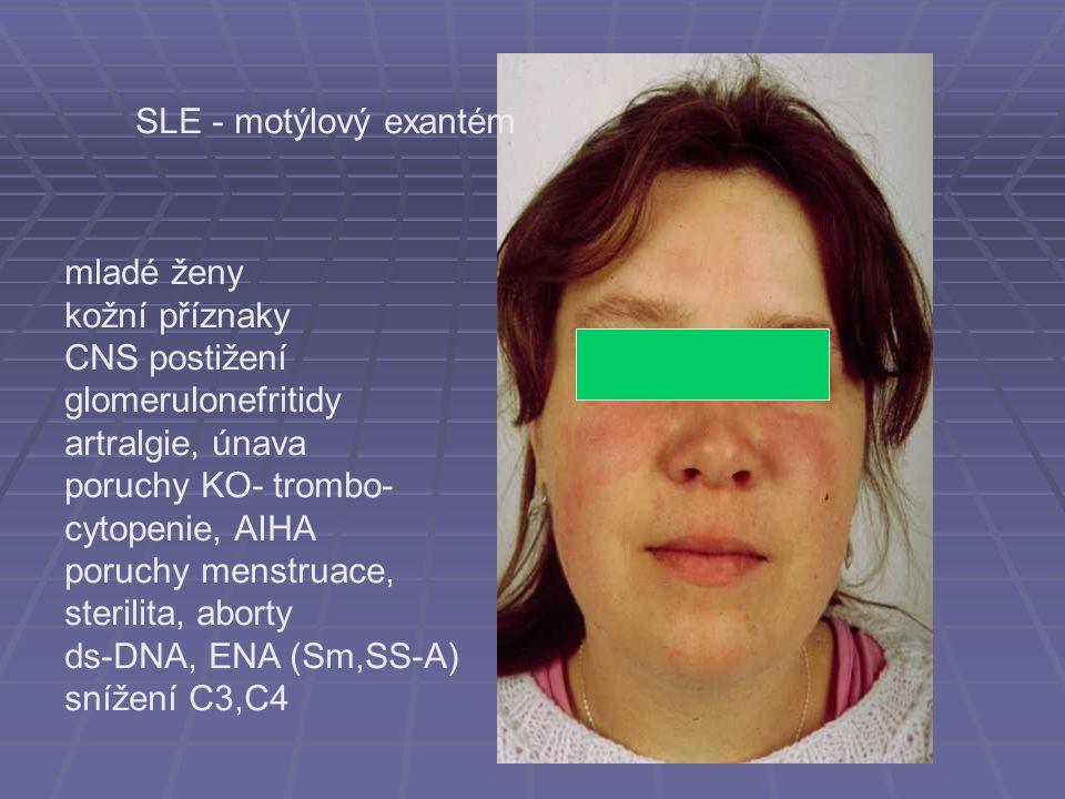 SLE - motýlový exantém mladé ženy kožní příznaky CNS postižení glomerulonefritidy artralgie, únava poruchy KO- trombo- cytopenie, AIHA poruchy menstru