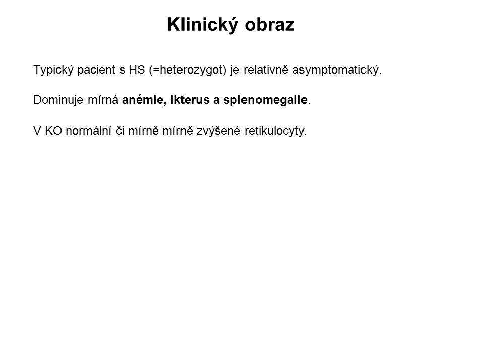 Klinický obraz Typický pacient s HS (=heterozygot) je relativně asymptomatický. Dominuje mírná anémie, ikterus a splenomegalie. V KO normální či mírně