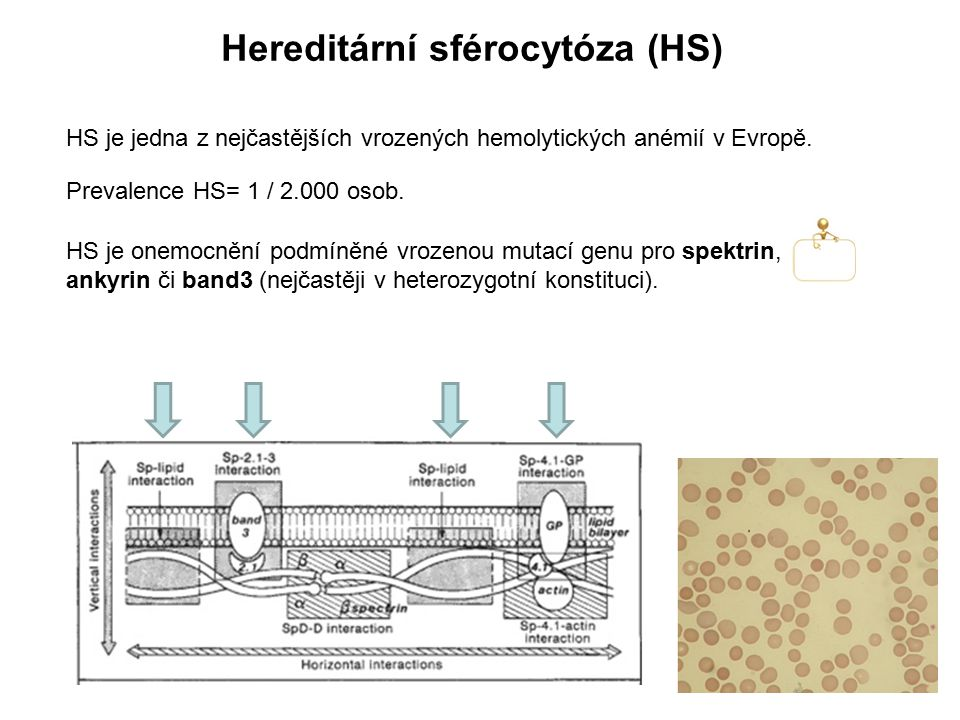 Patofyziologie HS Následkem mutací spektrinu, ankyrinu či band3 dochází k poruše vertikálních interakcí těchto proteinů, které hrají hlavní roli v udržování vertikální integrity erytrocytární membrány.