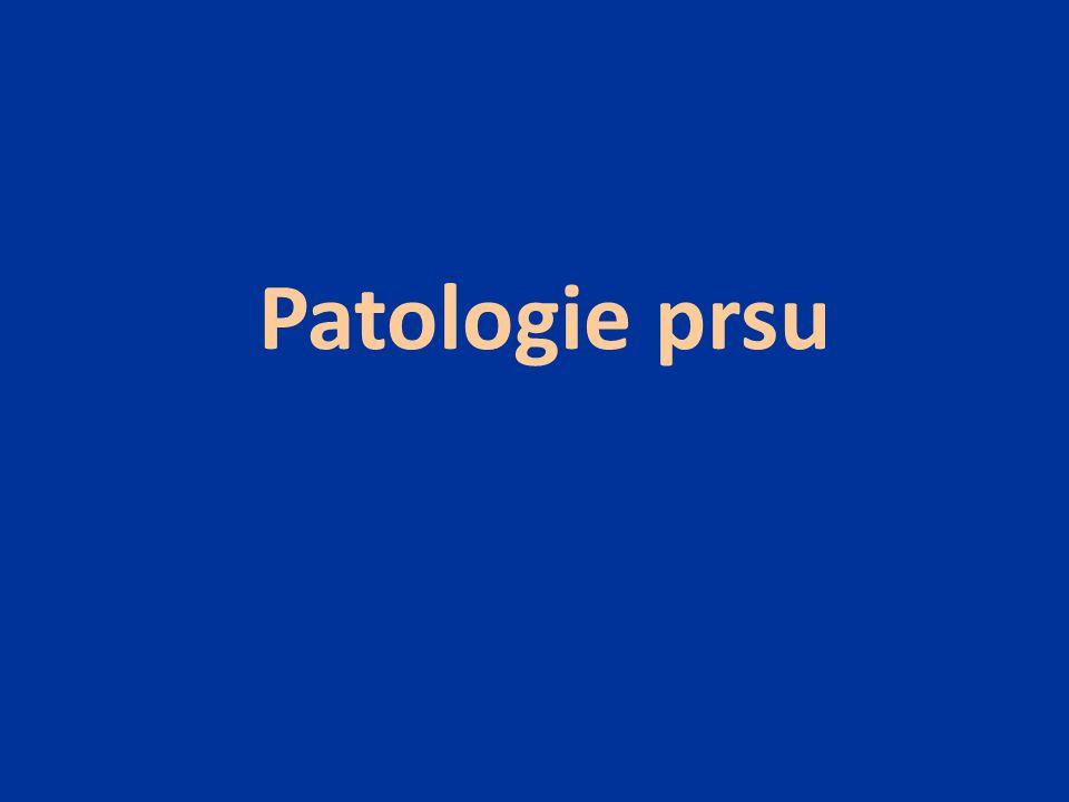 záněty fibrocystické změny - neproliferativní - proliferativní nádory - epitelové - fibroepitelové