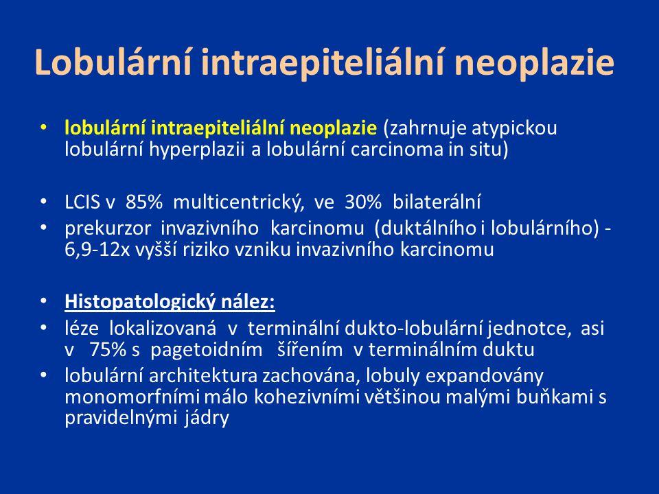 Lobulární intraepiteliální neoplazie lobulární intraepiteliální neoplazie (zahrnuje atypickou lobulární hyperplazii a lobulární carcinoma in situ) LCI