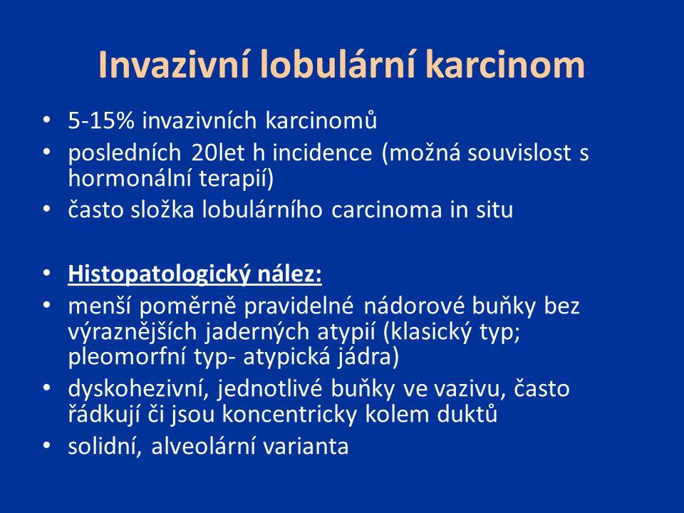 Invazivní lobulární karcinom 5-15% invazivních karcinomů posledních 20let h incidence (možná souvislost s hormonální terapií) často složka lobulárního