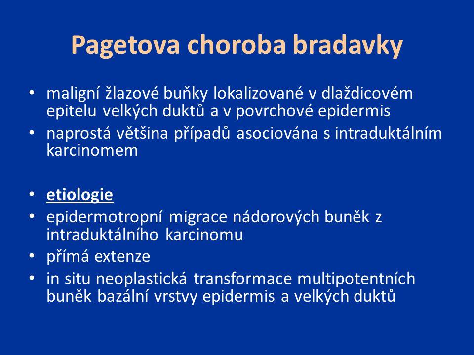 Pagetova choroba bradavky maligní žlazové buňky lokalizované v dlaždicovém epitelu velkých duktů a v povrchové epidermis naprostá většina případů asoc