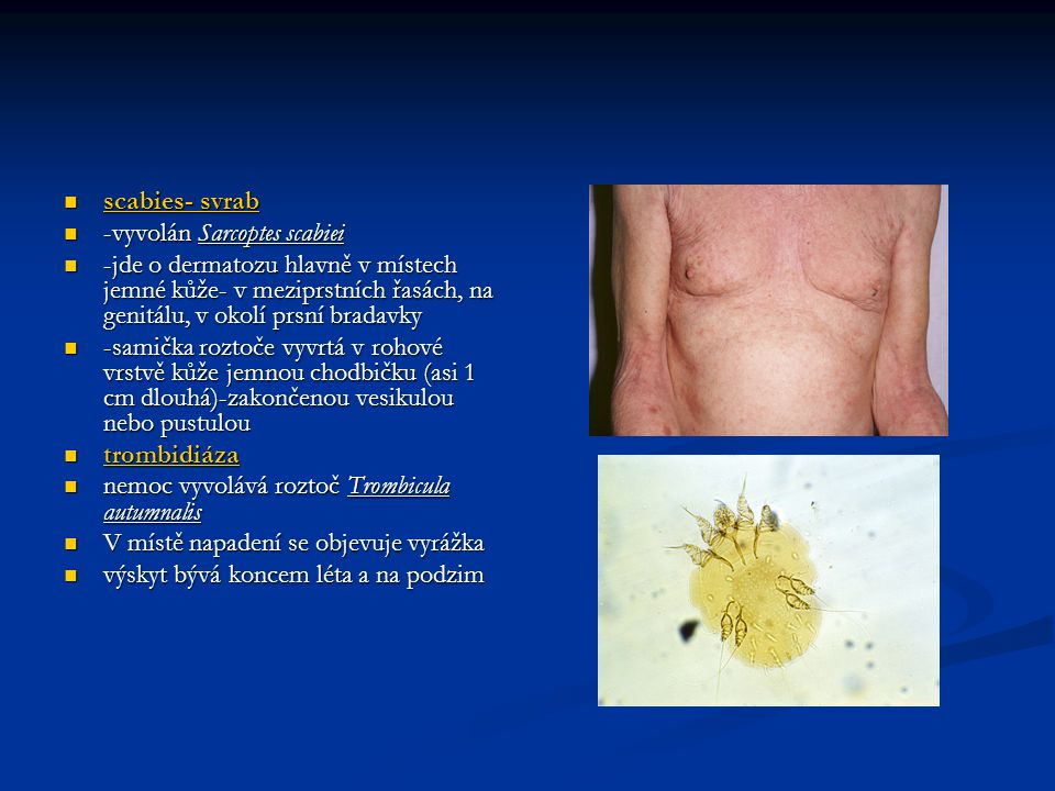  scabies- svrab  -vyvolán Sarcoptes scabiei  -jde o dermatozu hlavně v místech jemné kůže- v meziprstních řasách, na genitálu, v okolí prsní bradavky  -samička roztoče vyvrtá v rohové vrstvě kůže jemnou chodbičku (asi 1 cm dlouhá)-zakončenou vesikulou nebo pustulou  trombidiáza  nemoc vyvolává roztoč Trombicula autumnalis  V místě napadení se objevuje vyrážka  výskyt bývá koncem léta a na podzim