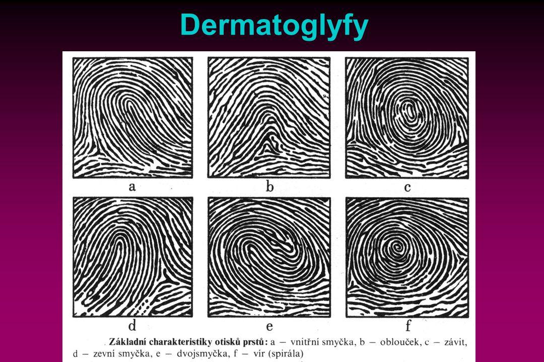 Dermatoglyfy