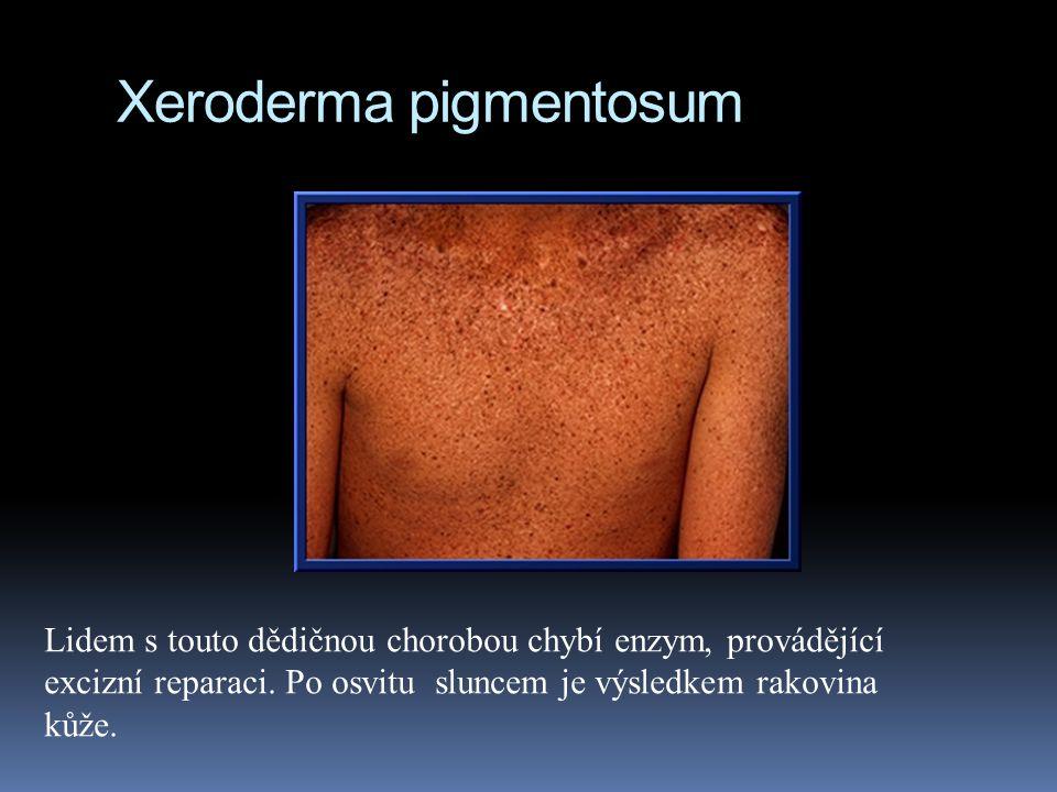 Xeroderma pigmentosum Lidem s touto dědičnou chorobou chybí enzym, provádějící excizní reparaci.