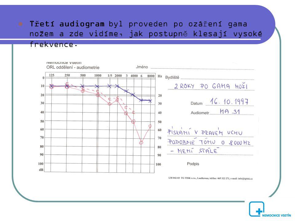  Třetí audiogram byl proveden po ozáření gama nožem a zde vidíme, jak postupně klesají vysoké frekvence.