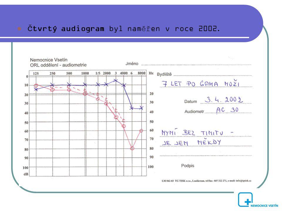  Čtvrtý audiogram byl naměřen v roce 2002.