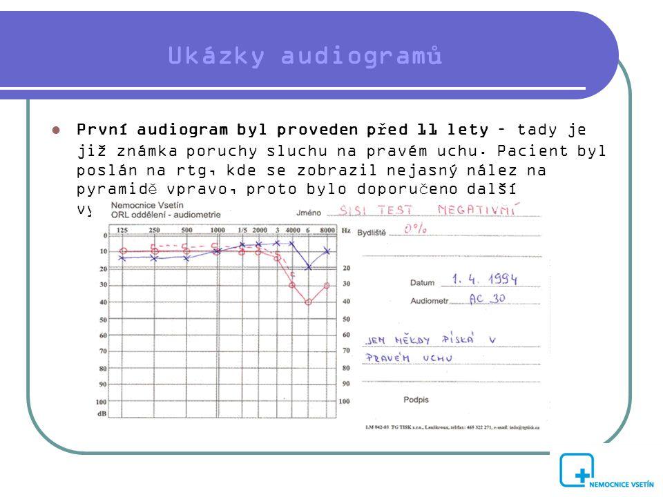 Ukázky audiogramů  První audiogram byl proveden před 11 lety – tady je již známka poruchy sluchu na pravém uchu. Pacient byl poslán na rtg, kde se zo