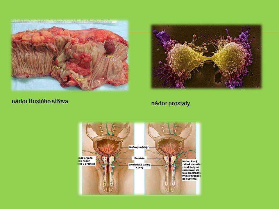 nádor tlustého střeva nádor prostaty